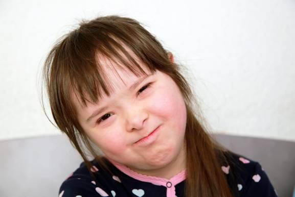 Young girl with Down Syndrome looking defiant